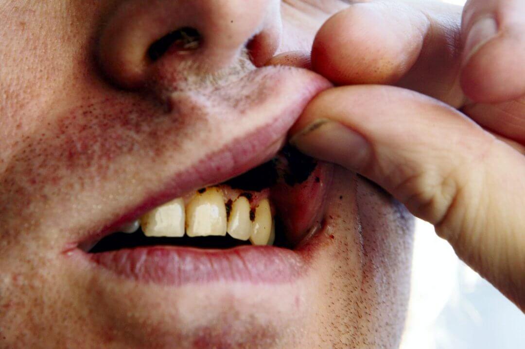 Влияние снюса на зубы, десны и сердце
